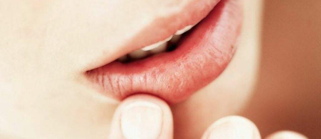 שפתיים יבשות